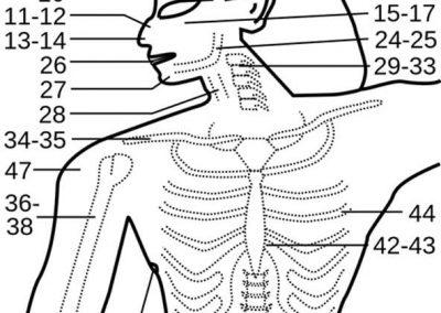 Los casos del papiro de Smith